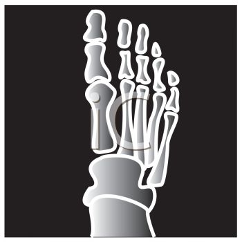 Royalty Free Clipart Image Cartoon X Ray Of A Foot