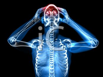 Glowing 3D Diagram of a Human with a Headache Front View