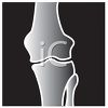 Cartoon CarX-ray of a Knee Joint clipart