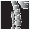 Cartoon X-ray of a Spine clipart